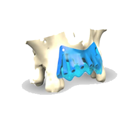 Barrera-Oculusiva3