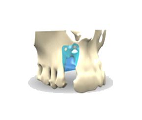 Barrera-Oculusiva1
